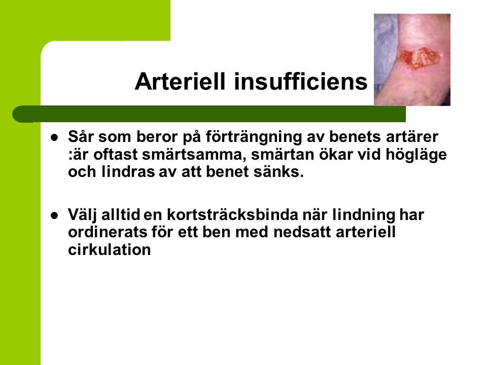 Arteriell insufficiens Sår som beror på förträngning av benets artärer :är oftast smärtsamma, smärtan ökar vid högläge och lindras av att benet sänks.