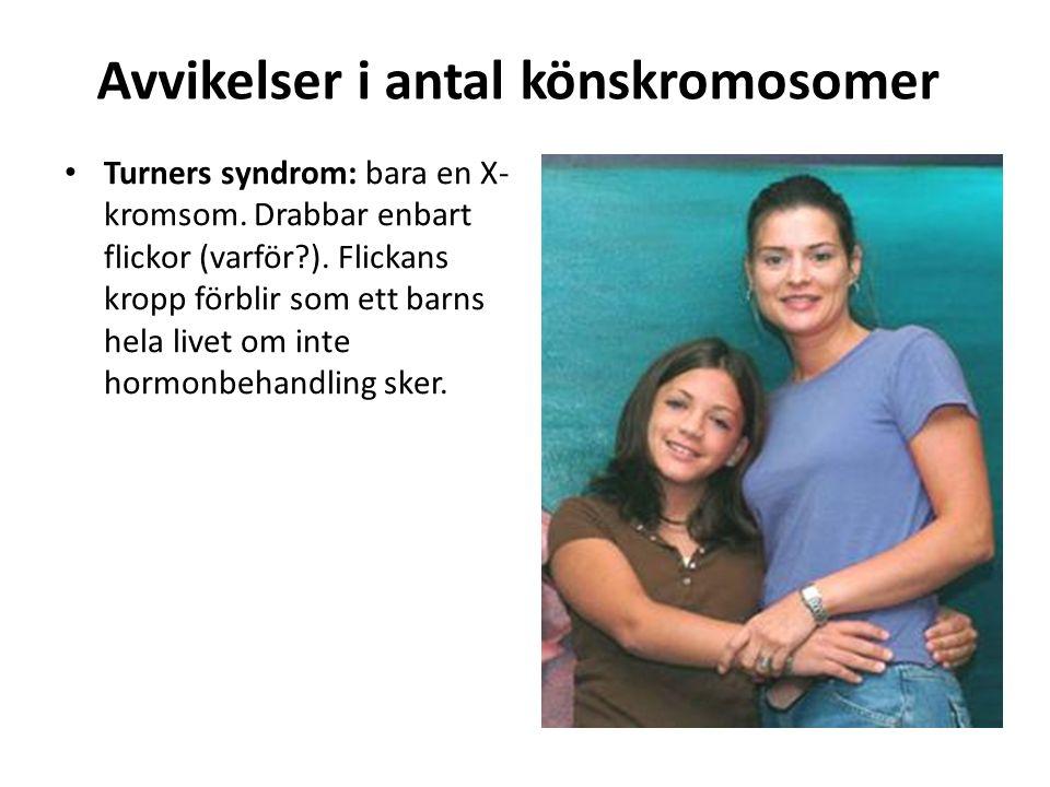 Avvikelser i antal könskromosomer Turners syndrom: bara en X- kromsom. Drabbar enbart flickor (varför?). Flickans kropp förblir som ett barns hela liv
