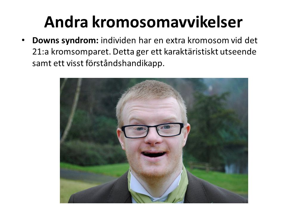 Andra kromosomavvikelser Downs syndrom: individen har en extra kromosom vid det 21:a kromsomparet. Detta ger ett karaktäristiskt utseende samt ett vis