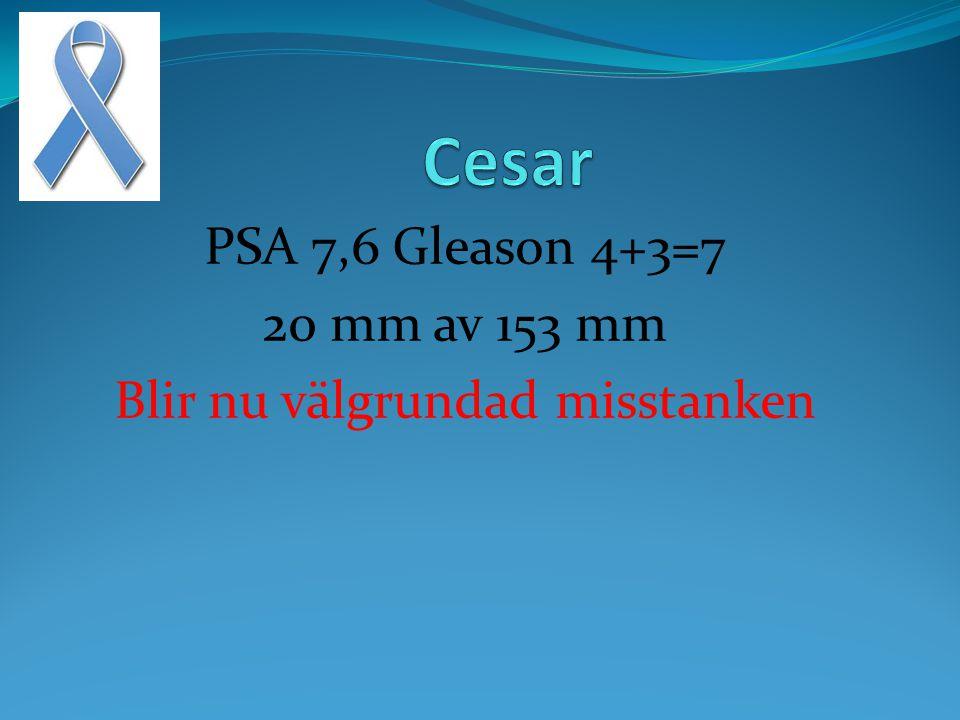PSA 7,6 Gleason 4+3=7 20 mm av 153 mm Blir nu välgrundad misstanken