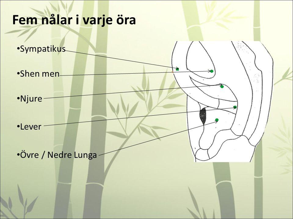 Fem nålar i varje öra Sympatikus Shen men Njure Lever Övre / Nedre Lunga