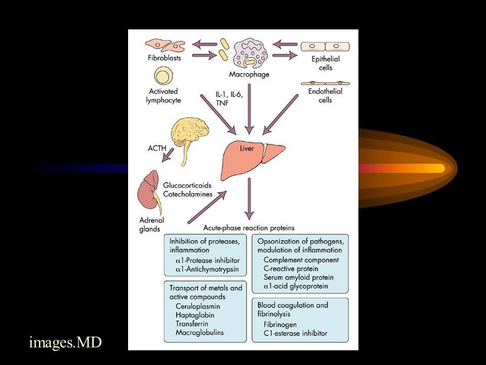 Immunglobulin M Sänkt koncentration vid: –Genetiskt betingad IgM-brist –Hematolgisk malignitet Förhöjd koncentration vid: –Infektioner Virussjukdomar Mykoplasmainfektion Tropiska sjd –Primär biliär cirros –Waldenströms makroglobulinemi = Lymfoplasmocytiskt lymfom –B-lymfocyter –MGUS Transtyretin  Albumin  Alfa-1 antitrypsin  IgA  IgM  IgG  Fibrinogen  Komplementfaktor C3  Transferrin  Alfa-2 makroglobulin  Haptoglobin  Ceruloplasmin 