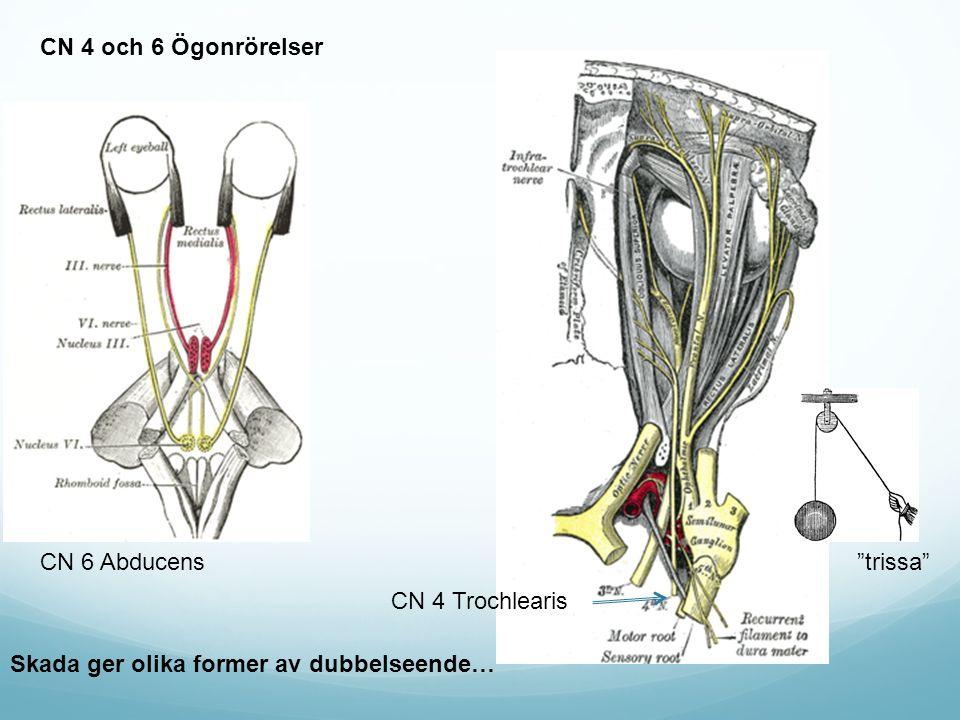 CN 4 och 6 Ögonrörelser CN 4 Trochlearis CN 6 Abducens Skada ger olika former av dubbelseende… trissa
