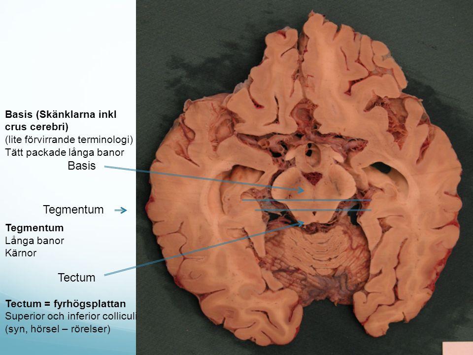 Tectum Tegmentum Basis Basis (Skänklarna inkl crus cerebri) (lite förvirrande terminologi) Tätt packade långa banor Tegmentum Långa banor Kärnor Tectum = fyrhögsplattan Superior och inferior colliculi (syn, hörsel – rörelser)