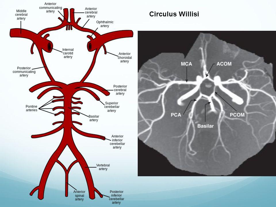 Circulus Willisi