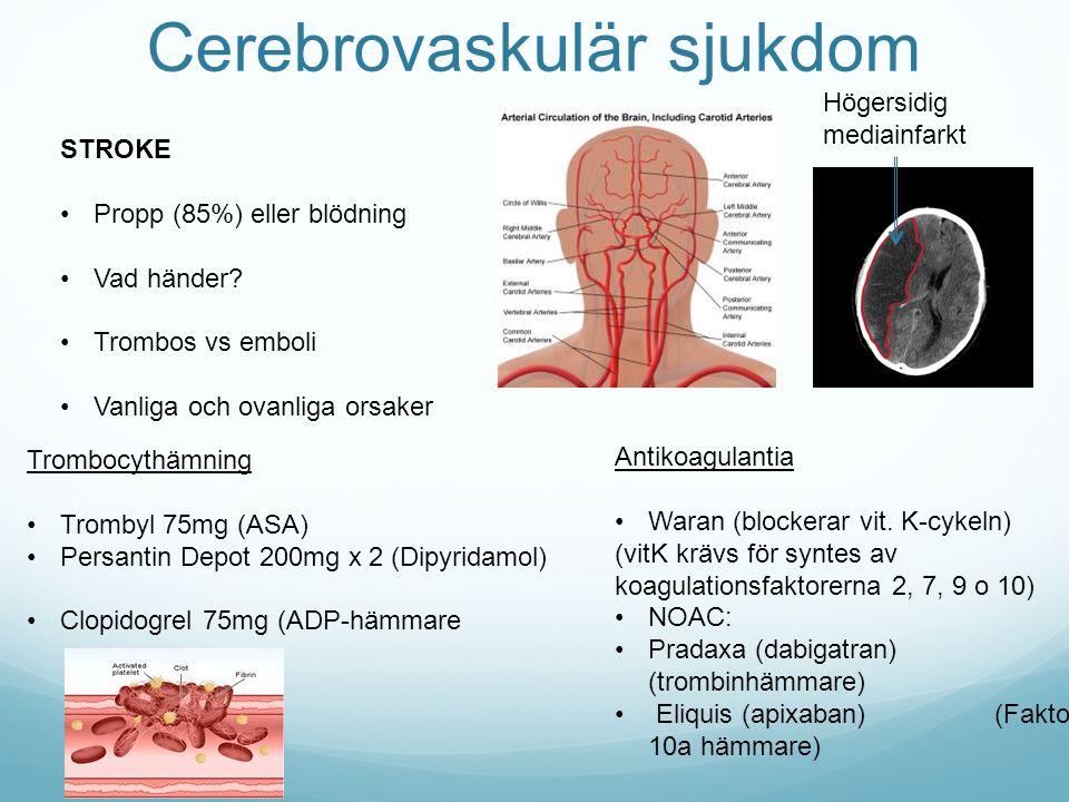 Cerebrovaskulär sjukdom STROKE Propp (85%) eller blödning Vad händer? Trombos vs emboli Vanliga och ovanliga orsaker Högersidig mediainfarkt Trombocyt