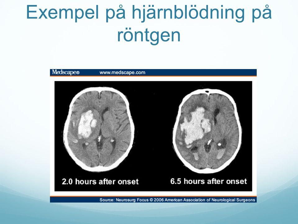 Exempel på hjärnblödning på röntgen