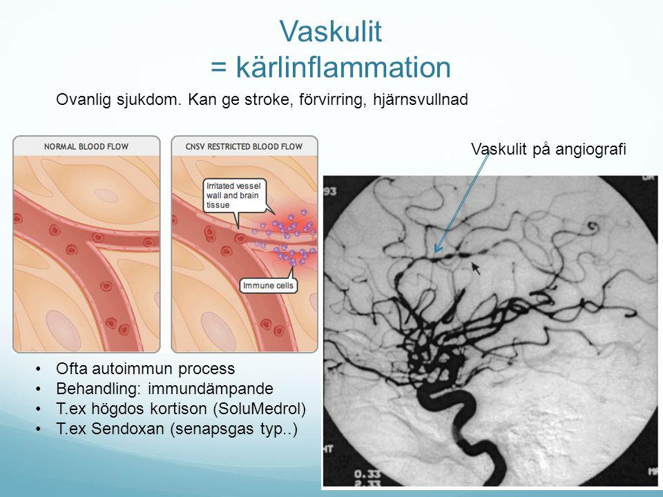 Vaskulit = kärlinflammation Vaskulit på angiografi Ofta autoimmun process Behandling: immundämpande T.ex högdos kortison (SoluMedrol) T.ex Sendoxan (s