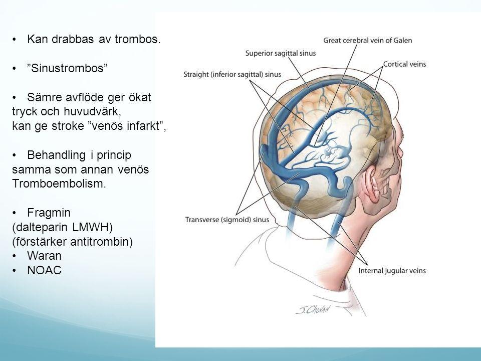 """Kan drabbas av trombos. """"Sinustrombos"""" Sämre avflöde ger ökat tryck och huvudvärk, kan ge stroke """"venös infarkt"""", Behandling i princip samma som annan"""