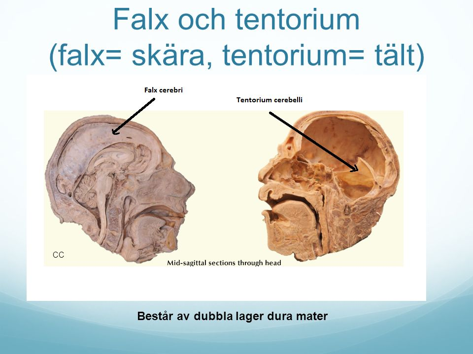 Falx och tentorium (falx= skära, tentorium= tält) Består av dubbla lager dura mater CC