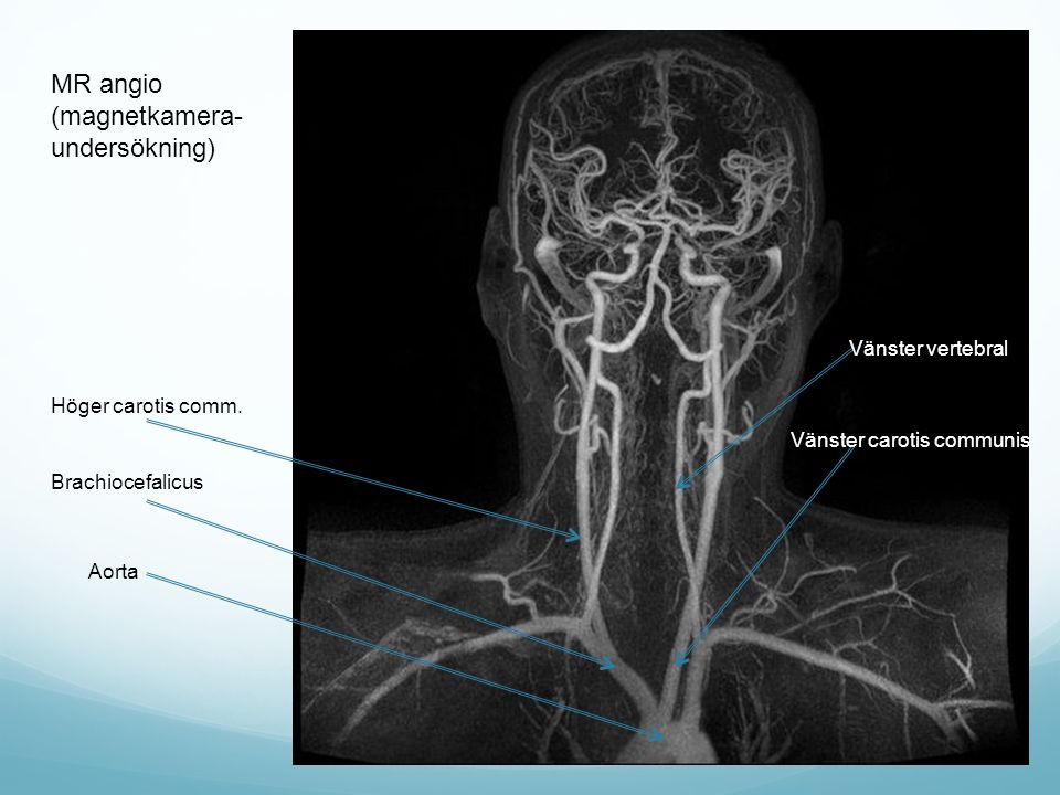 MR angio (magnetkamera- undersökning) Vänster vertebral Vänster carotis communis Höger carotis comm. Brachiocefalicus Aorta