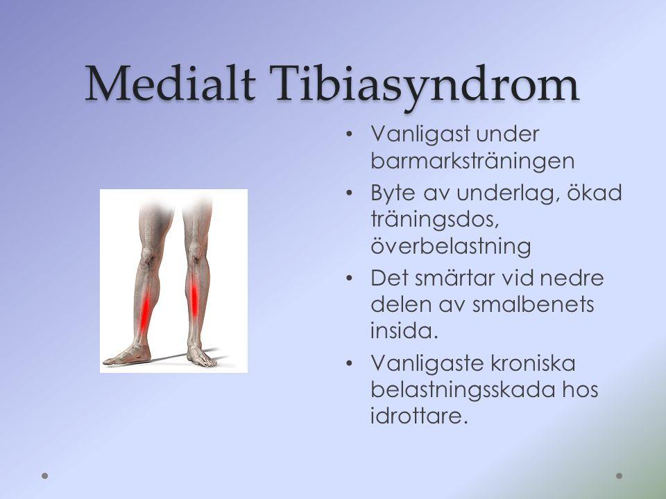 Medialt Tibiasyndrom Vanligast under barmarksträningen Byte av underlag, ökad träningsdos, överbelastning Det smärtar vid nedre delen av smalbenets in