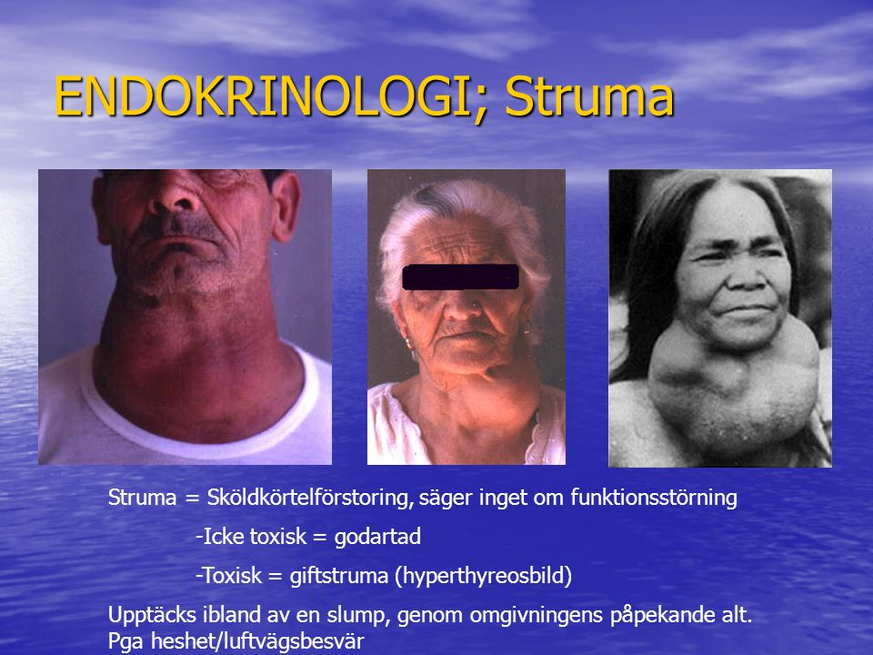 ENDOKRINOLOGI; Struma Struma = Sköldkörtelförstoring, säger inget om funktionsstörning -Icke toxisk = godartad -Toxisk = giftstruma (hyperthyreosbild)