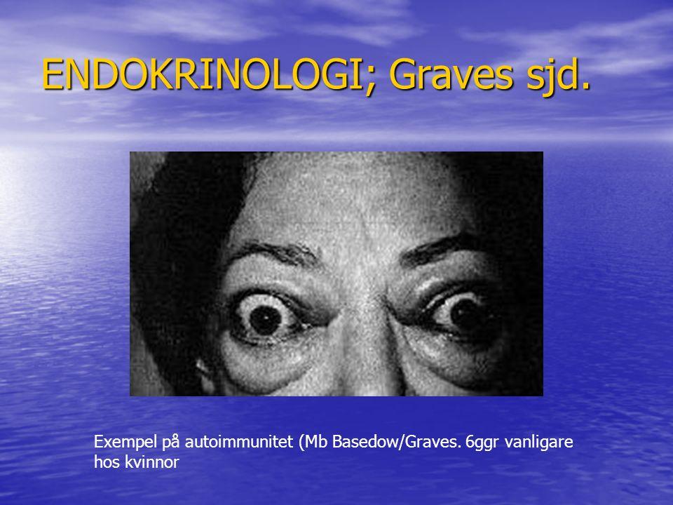 ENDOKRINOLOGI; Graves sjd. Exempel på autoimmunitet (Mb Basedow/Graves. 6ggr vanligare hos kvinnor