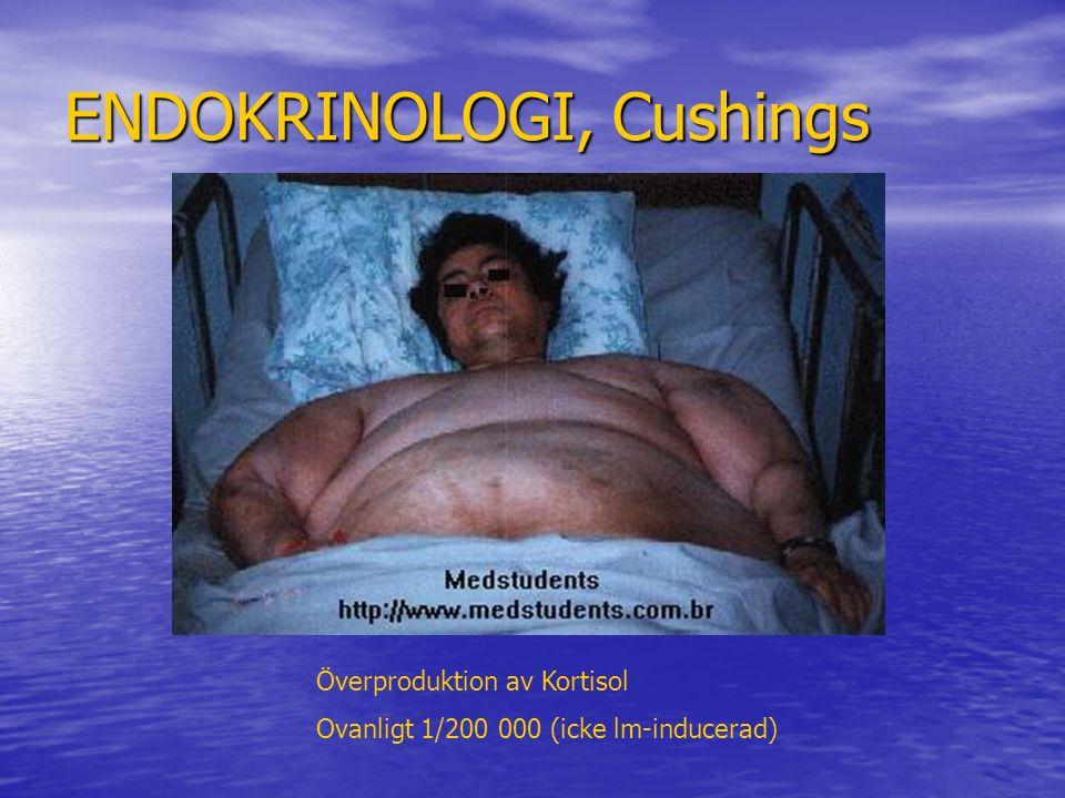 ENDOKRINOLOGI, Cushings Överproduktion av Kortisol Ovanligt 1/200 000 (icke lm-inducerad)