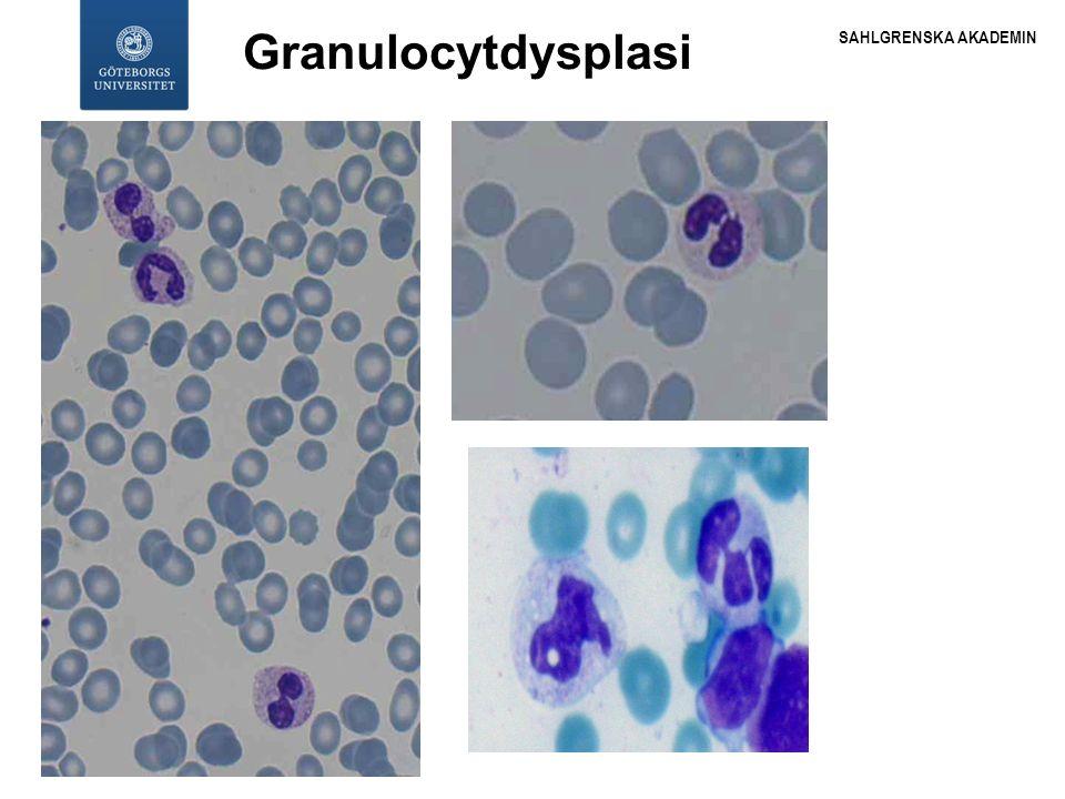 SAHLGRENSKA AKADEMIN WHO-klassifikationen 2008 låg risk Refraktär cytopeni med unilineär dysplasi: Refraktär anemi (RA) Refraktär neutropeni (RN), Refraktär trombocytopeni (RT) Refraktär anemi med ringsideroblaster (RARS) Refraktär cytopeni med multilineär dysplasi RCMD MSD-oklaccificerbart (MDS-U) MDS associerat med isolerad del(5q) 2015-09-28 2015-10-1018HG 18