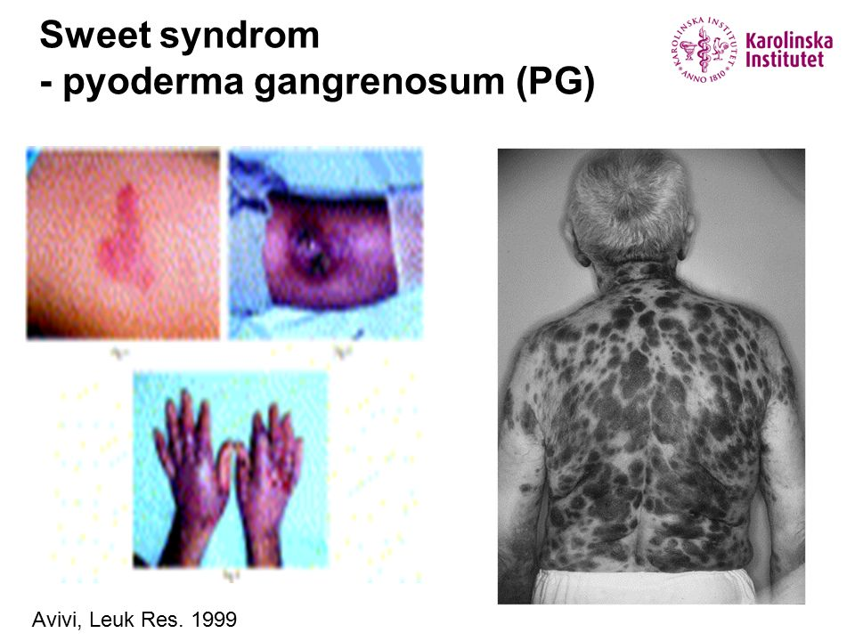 Sweet syndrom - pyoderma gangrenosum (PG) Buck, Int J Dermatol 2008 Avivi, Leuk Res. 1999