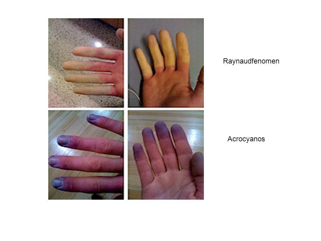 Raynaudfenomen Acrocyanos