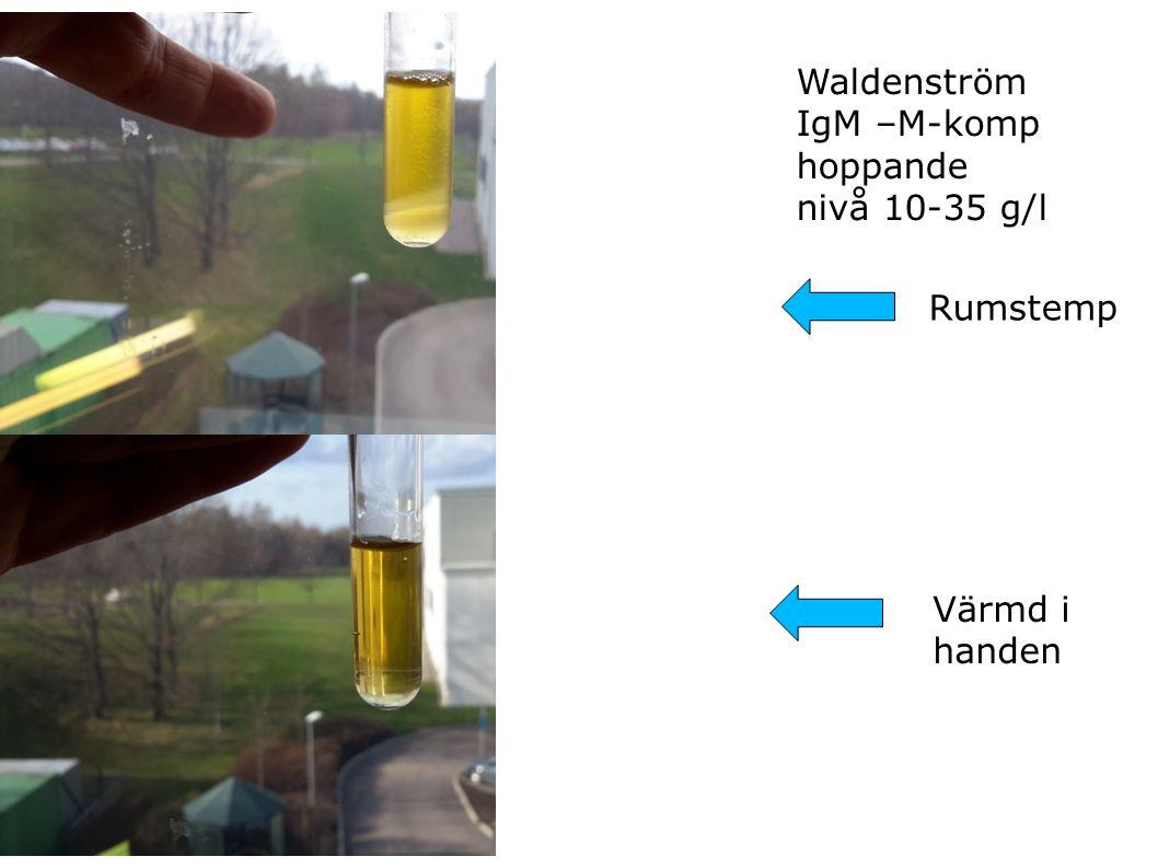 Waldenström IgM –M-komp hoppande nivå 10-35 g/l Rumstemp Värmd i handen