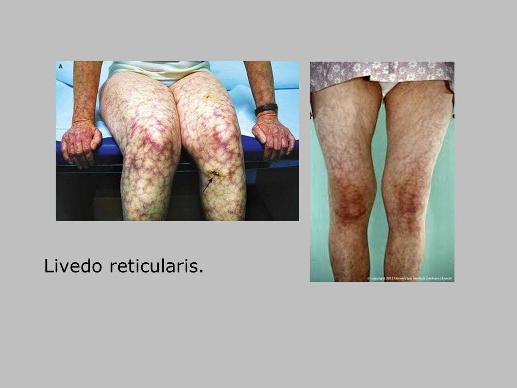 Livedo reticularis.