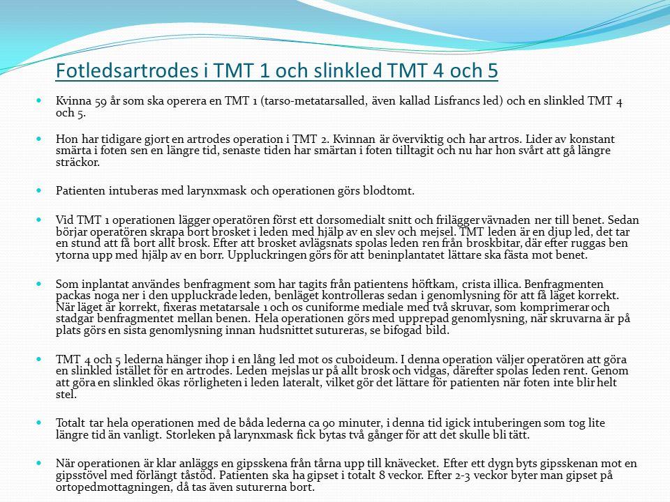 Fotledsartrodes i TMT 1 och slinkled TMT 4 och 5 Kvinna 59 år som ska operera en TMT 1 (tarso-metatarsalled, även kallad Lisfrancs led) och en slinkle