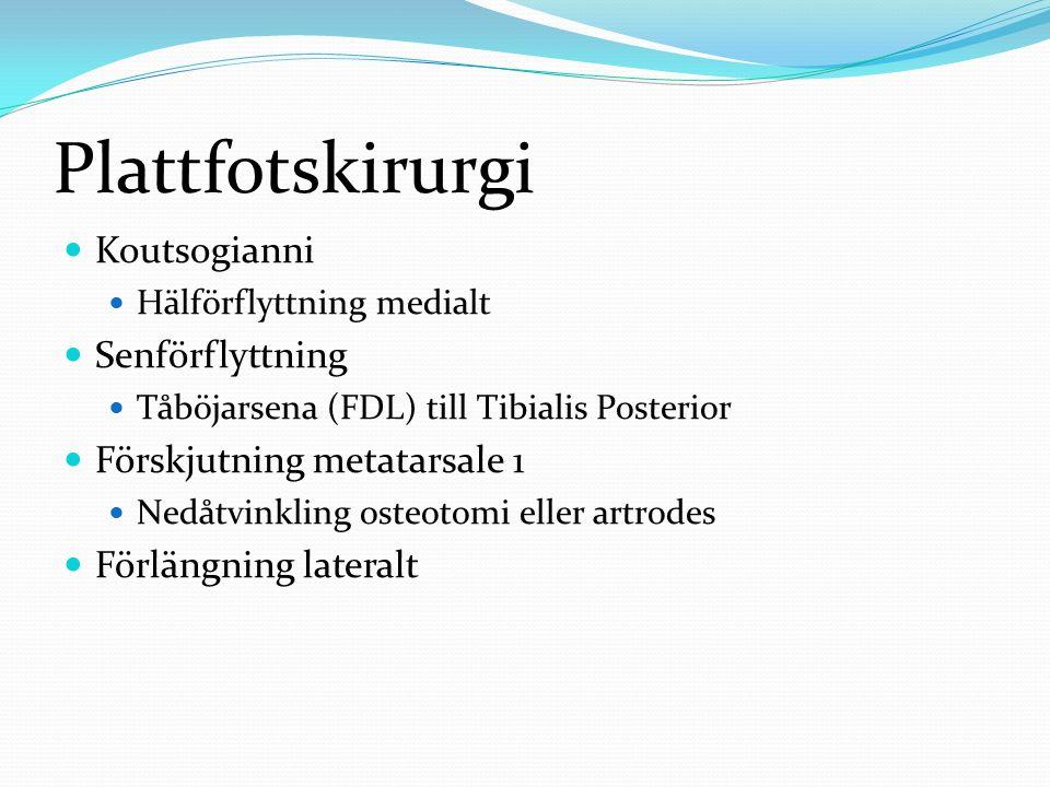 Plattfotskirurgi Koutsogianni Hälförflyttning medialt Senförflyttning Tåböjarsena (FDL) till Tibialis Posterior Förskjutning metatarsale 1 Nedåtvinkli