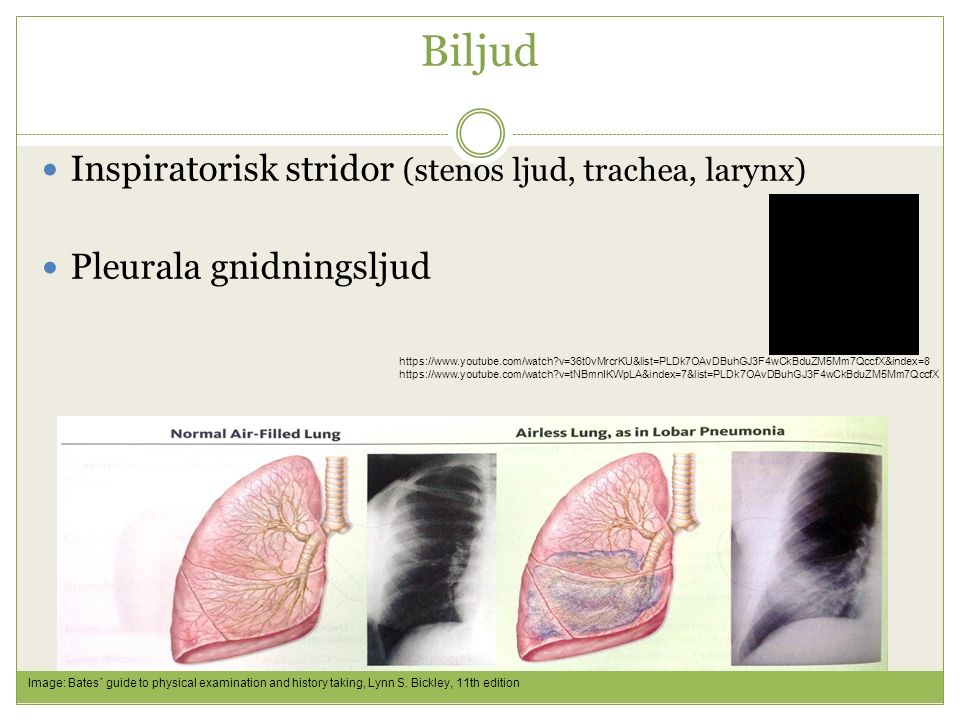 Biljud Inspiratorisk stridor (stenos ljud, trachea, larynx) Pleurala gnidningsljud https://www.youtube.com/watch?v=36t0vMrcrKU&list=PLDk7OAvDBuhGJ3F4wCkBduZM5Mm7QccfX&index=8 https://www.youtube.com/watch?v=tNBmnIKWpLA&index=7&list=PLDk7OAvDBuhGJ3F4wCkBduZM5Mm7QccfX Image: Bates´ guide to physical examination and history taking, Lynn S.