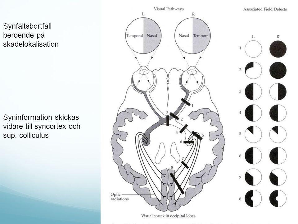Synfältsbortfall beroende på skadelokalisation Syninformation skickas vidare till syncortex och sup. colliculus