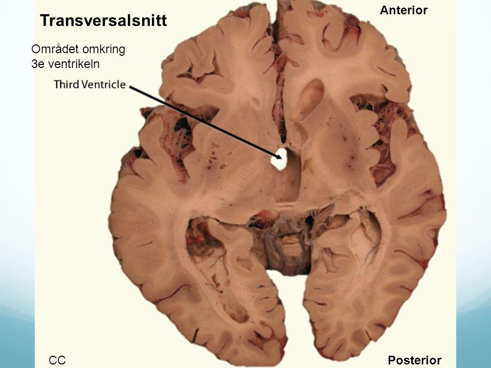 Området omkring 3e ventrikeln CC Anterior Posterior Transversalsnitt