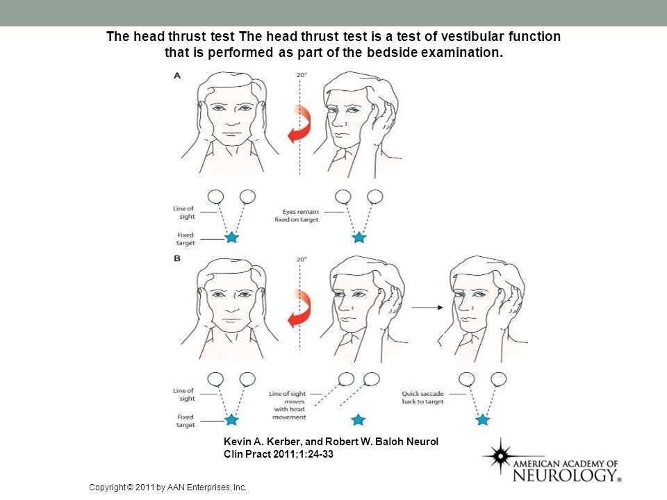 The head thrust test The head thrust test is a test of vestibular function that is performed as part of the bedside examination. Kevin A. Kerber, and