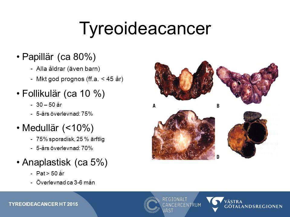 Tyreoideacancer Papillär (ca 80%) -Alla åldrar (även barn) -Mkt god prognos (ff.a.