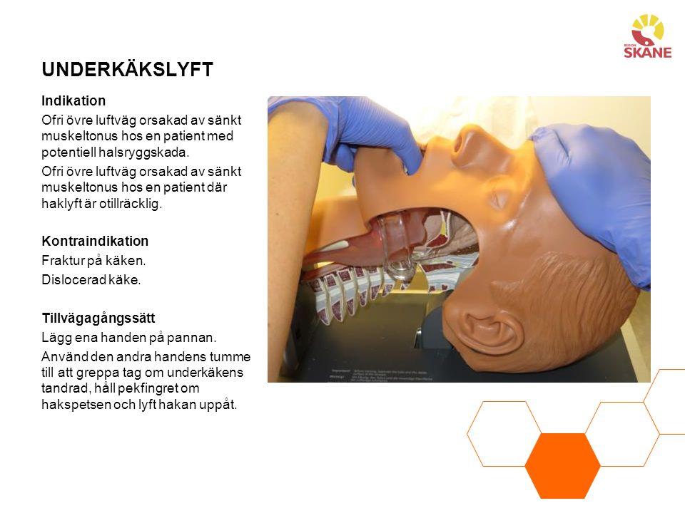 UNDERKÄKSLYFT Indikation Ofri övre luftväg orsakad av sänkt muskeltonus hos en patient med potentiell halsryggskada. Ofri övre luftväg orsakad av sänk