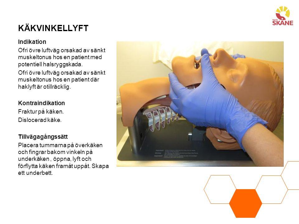 KÄKVINKELLYFT Indikation Ofri övre luftväg orsakad av sänkt muskeltonus hos en patient med potentiell halsryggskada. Ofri övre luftväg orsakad av sänk