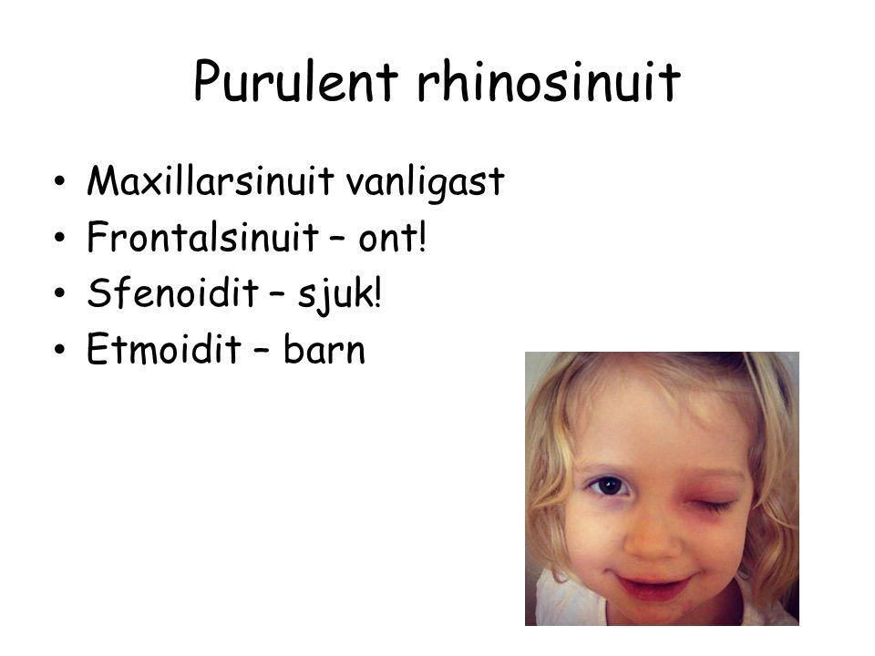 Purulent rhinosinuit Maxillarsinuit vanligast Frontalsinuit – ont! Sfenoidit – sjuk! Etmoidit – barn