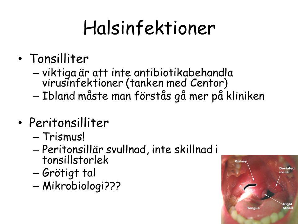 Halsinfektioner Tonsilliter – viktiga är att inte antibiotikabehandla virusinfektioner (tanken med Centor) – Ibland måste man förstås gå mer på klinik