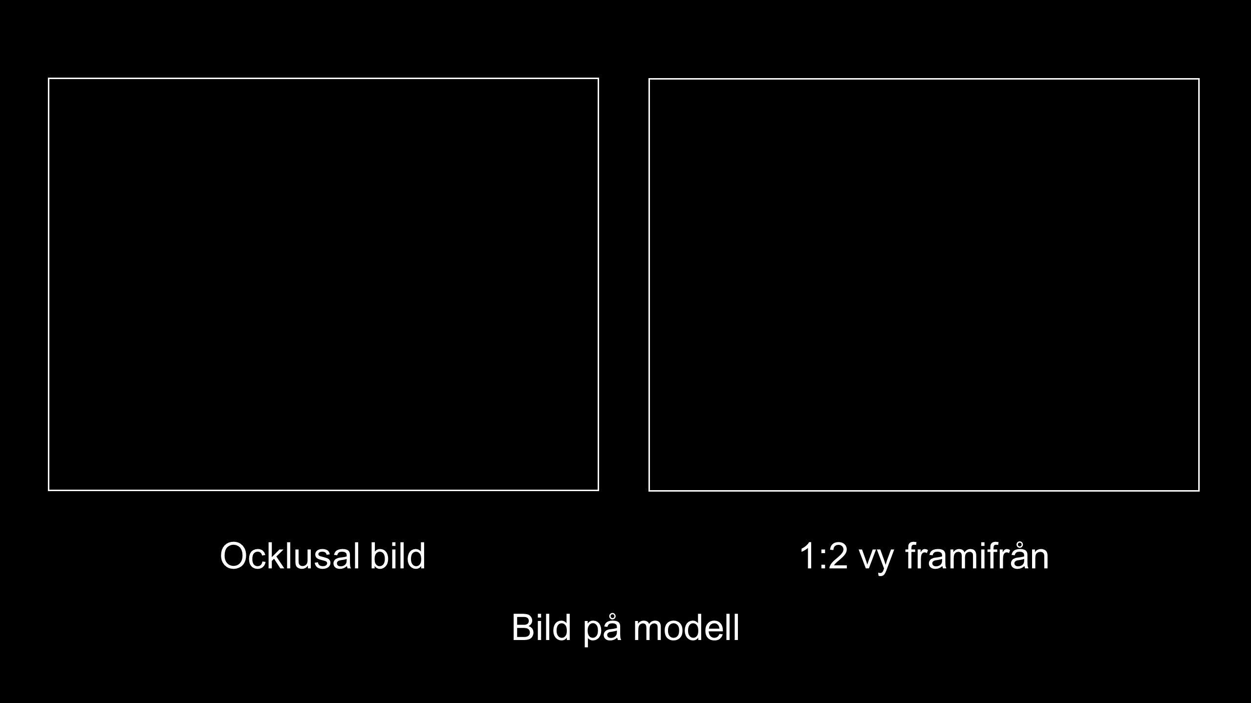Bild på modell Ocklusal bild1:2 vy framifrån