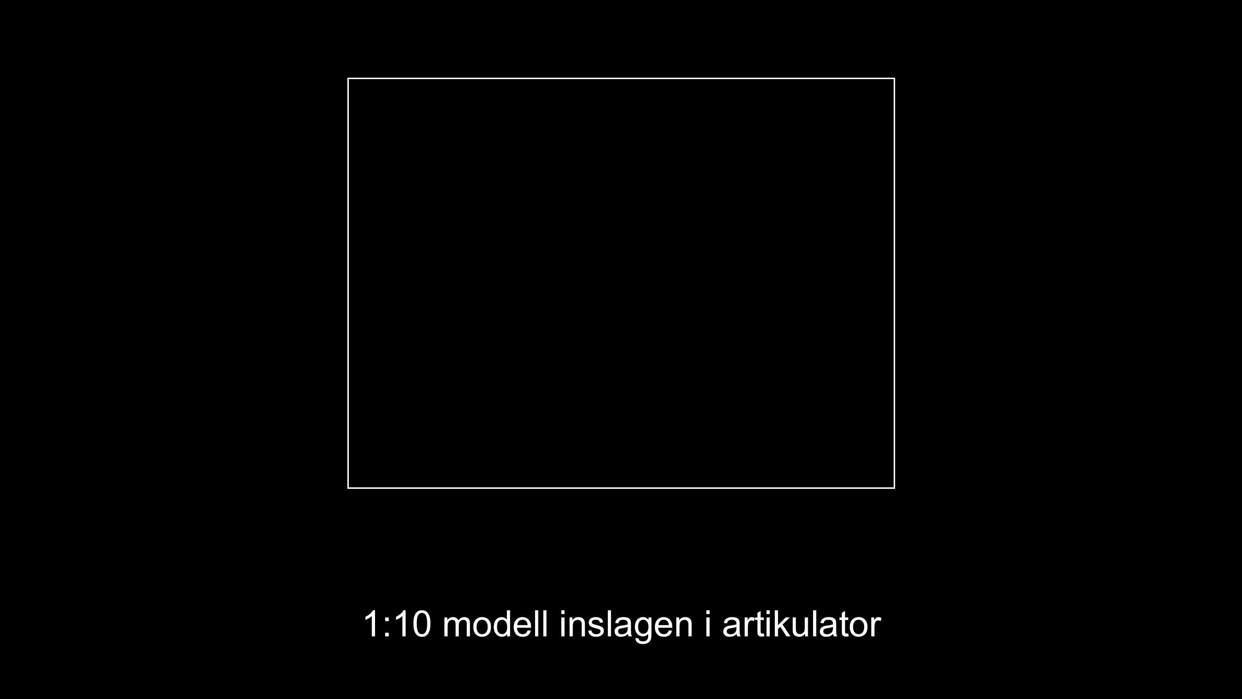 1:10 modell inslagen i artikulator