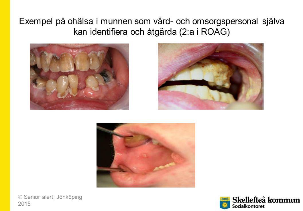 Exempel på ohälsa i munnen som vård- och omsorgspersonal själva kan identifiera och åtgärda (2:a i ROAG) © Senior alert, Jönköping 2015