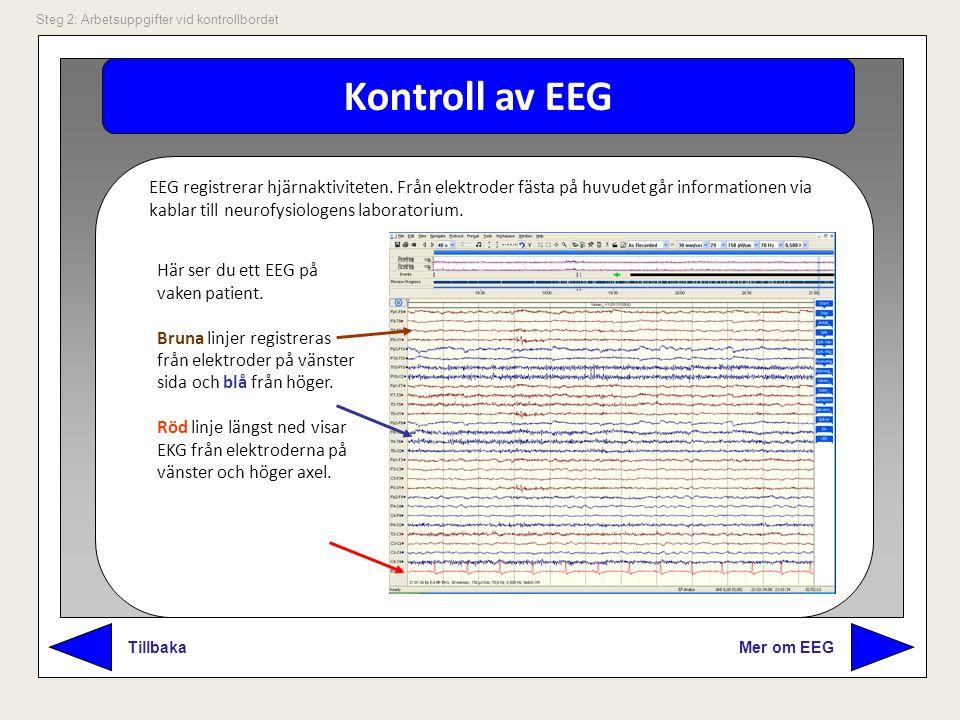 Kontroll av EEG Mer om EEG Tillbaka Steg 2: Arbetsuppgifter vid kontrollbordet EEG registrerar hjärnaktiviteten. Från elektroder fästa på huvudet går