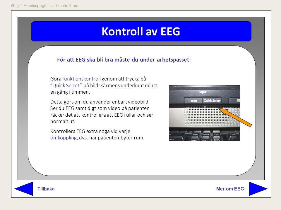 """Kontroll av EEG Mer om EEG Tillbaka Steg 2: Arbetsuppgifter vid kontrollbordet Göra funktionskontroll genom att trycka på """"Quick Select"""" på bildskärme"""