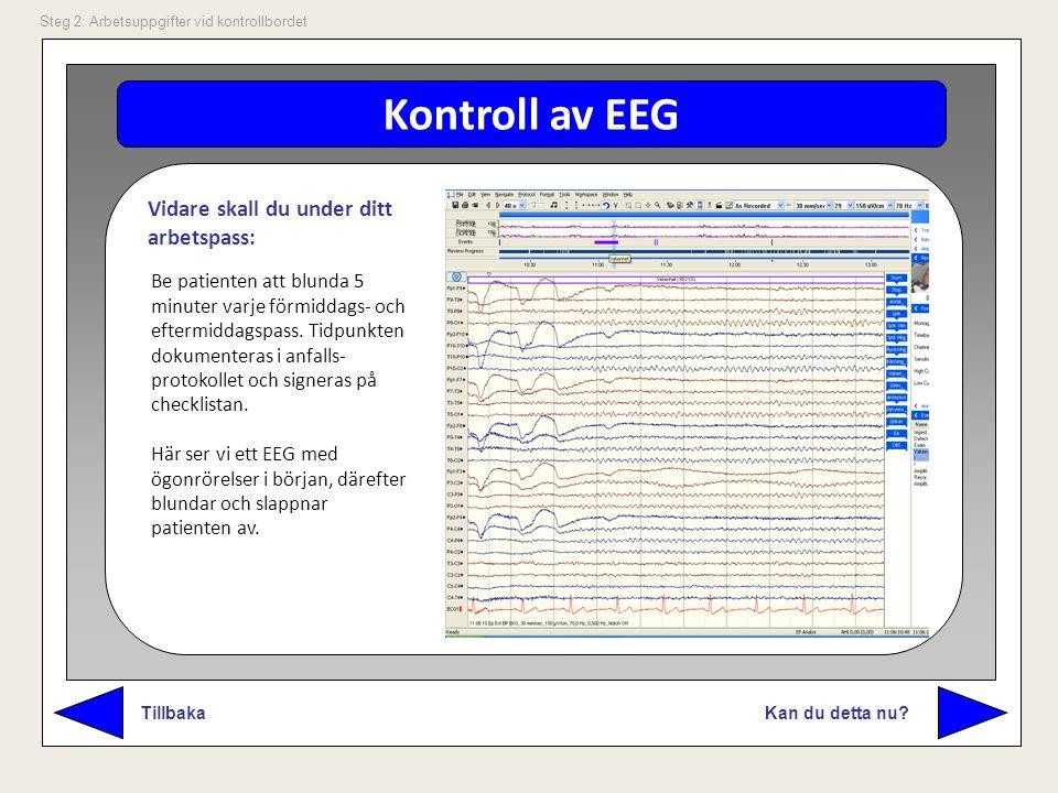 Kontroll av EEG Kan du detta nu? Tillbaka Steg 2: Arbetsuppgifter vid kontrollbordet Be patienten att blunda 5 minuter varje förmiddags- och eftermidd