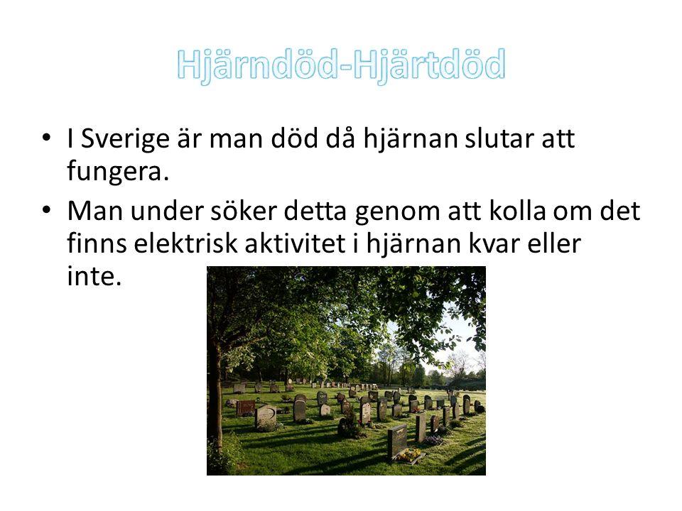 I Sverige är man död då hjärnan slutar att fungera. Man under söker detta genom att kolla om det finns elektrisk aktivitet i hjärnan kvar eller inte.