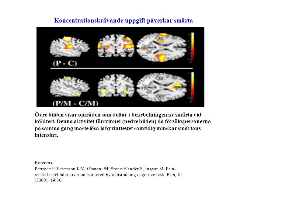 | Clinical Neuroscience | Clinical Neuroscience Övre bilden visar områden som deltar i bearbetningen av smärta vid köldtest.