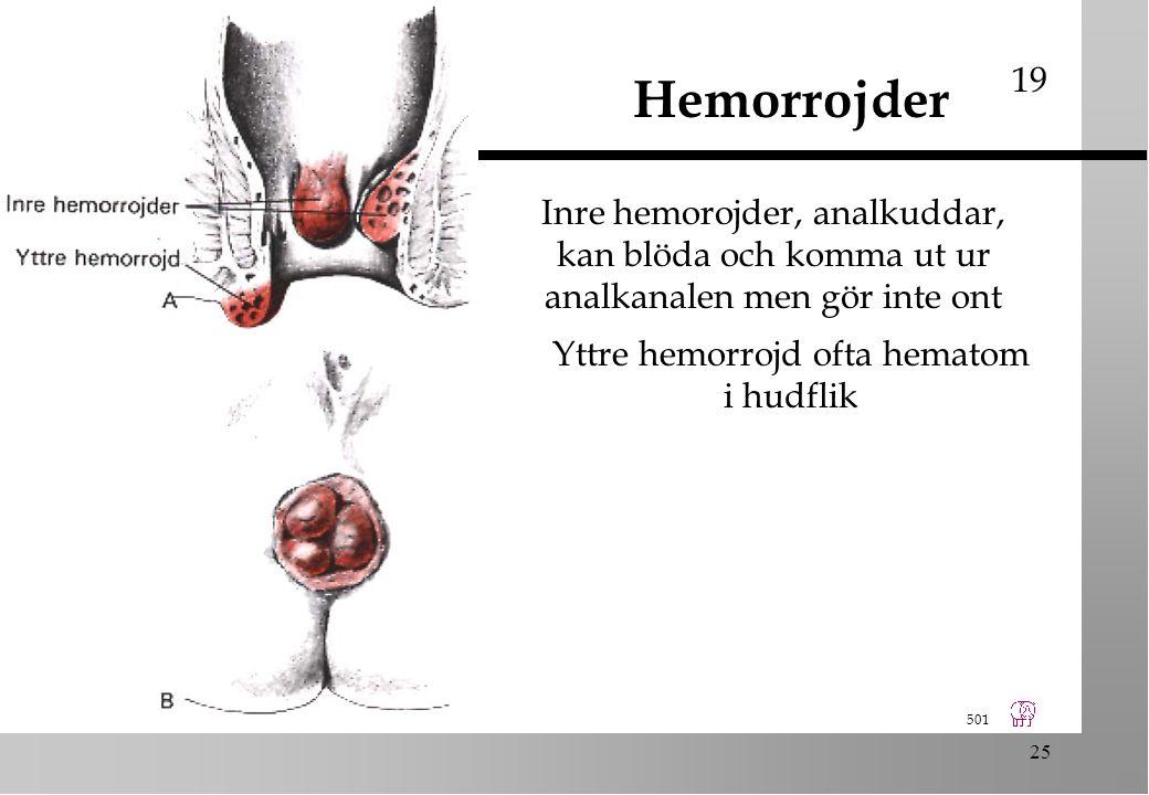 501 25 Yttre hemorrojd ofta hematom i hudflik Hemorrojder 19 Inre hemorojder, analkuddar, kan blöda och komma ut ur analkanalen men gör inte ont