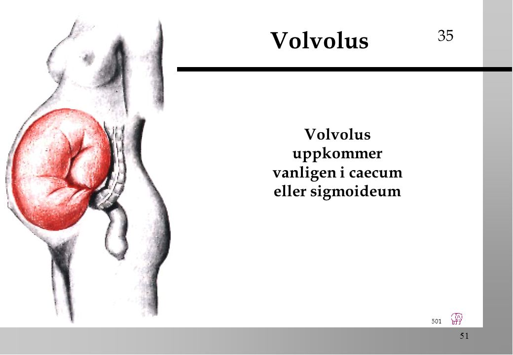 501 51 Volvolus Volvolus uppkommer vanligen i caecum eller sigmoideum 35