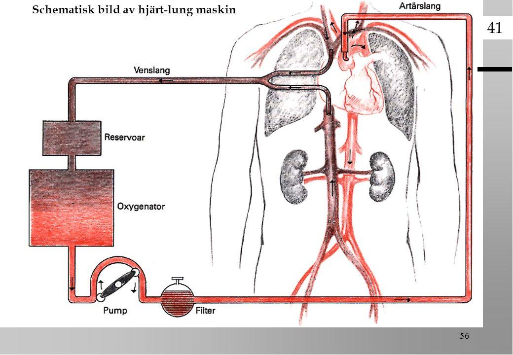 501 56 Schematisk bild av hjärt-lung maskin 41