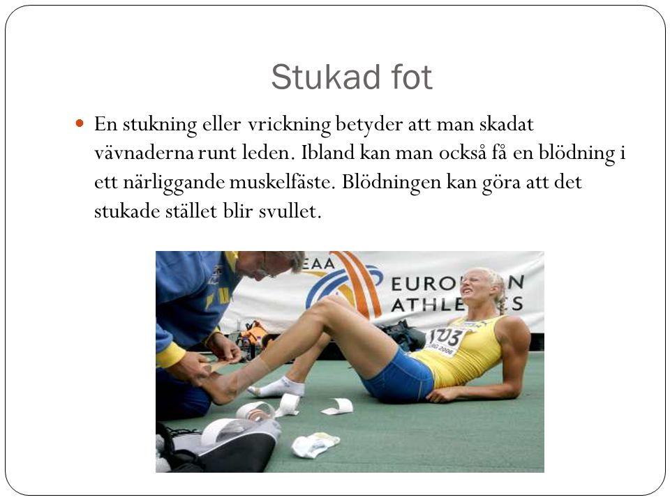Stukad fot En stukning eller vrickning betyder att man skadat vävnaderna runt leden.