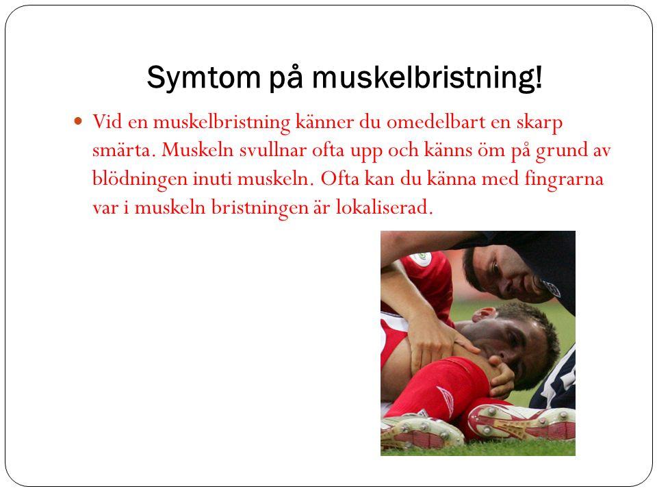 Symtom på muskelbristning. Vid en muskelbristning känner du omedelbart en skarp smärta.