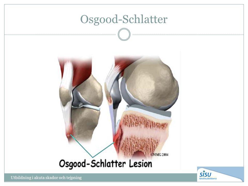 Osgood-Schlatter Utbildning i akuta skador och tejpning
