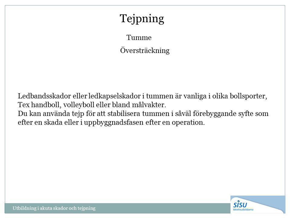 Tejpning Tumme Översträckning Ledbandsskador eller ledkapselskador i tummen är vanliga i olika bollsporter, Tex handboll, volleyboll eller bland målvakter.